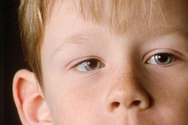 Nhược thị điều trị sớm sẽ tránh được nguy cơ suy giản thị lực nghiêm trọng